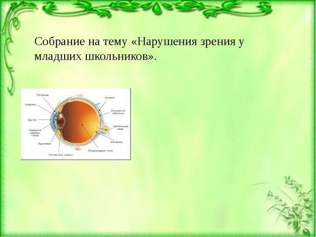 Собрание на тему «Нарушения зрения у младших школьников». Строение глаза:Гла...
