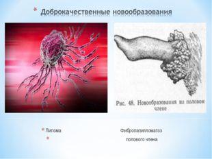 Липома Фибропапилломатоз полового члена