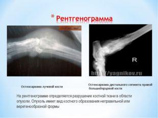 На рентгенограмме определяется разрушение костной ткани в области опухоли. Оп