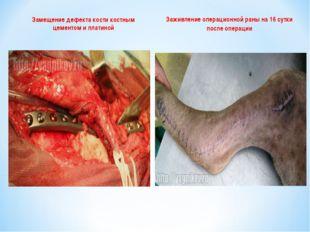 Замещение дефекта кости костным цементом и платиной Заживление операционной р
