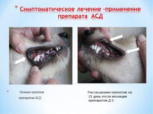 Лечение папиллом препаратом АСД Рассасывание папиллом на 21 день после инъек