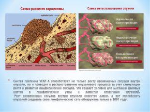 Схема развития карциномы Схема метастазирования опухоли Нормальная васкуляриз