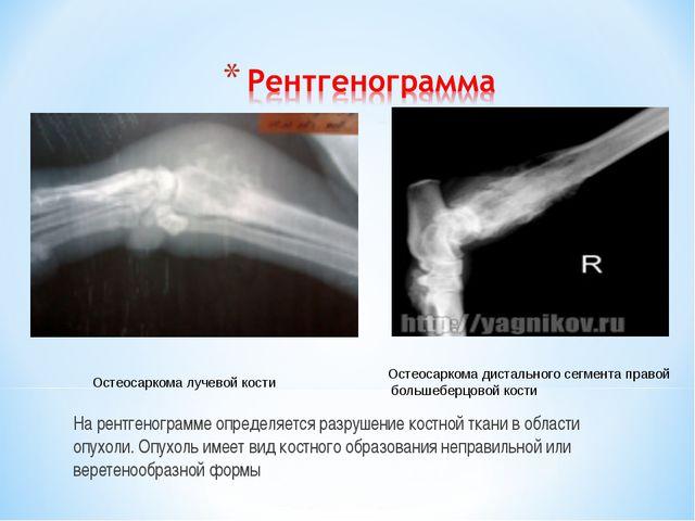На рентгенограмме определяется разрушение костной ткани в области опухоли. Оп...