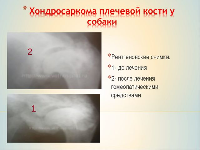 Рентгеновские снимки. 1- до лечения 2- после лечения гомеопатическими средств...