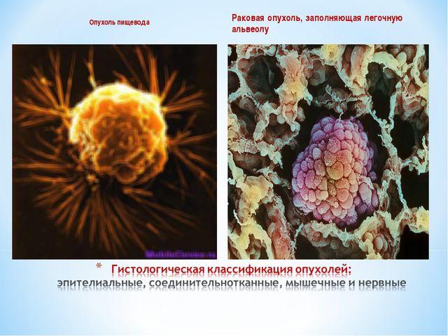 Опухоль пищевода Раковая опухоль, заполняющая легочную альвеолу