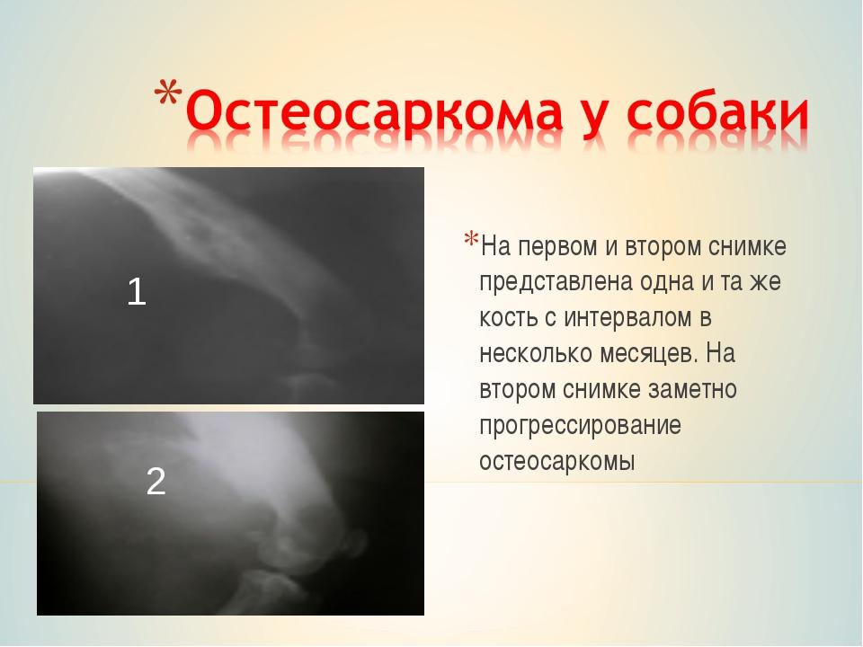 На первом и втором снимке представлена одна и та же кость с интервалом в неск...