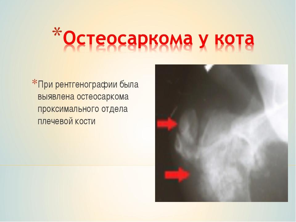 При рентгенографии была выявлена остеосаркома проксимального отдела плечевой...
