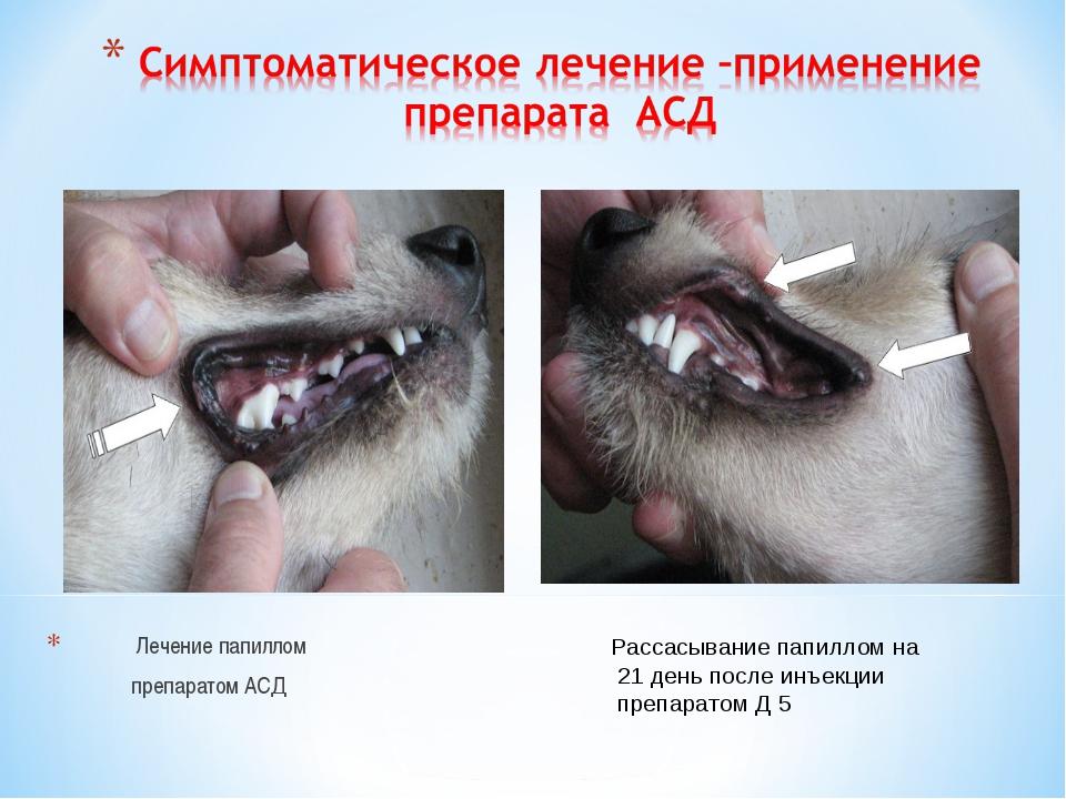 Лечение папиллом препаратом АСД Рассасывание папиллом на 21 день после инъек...