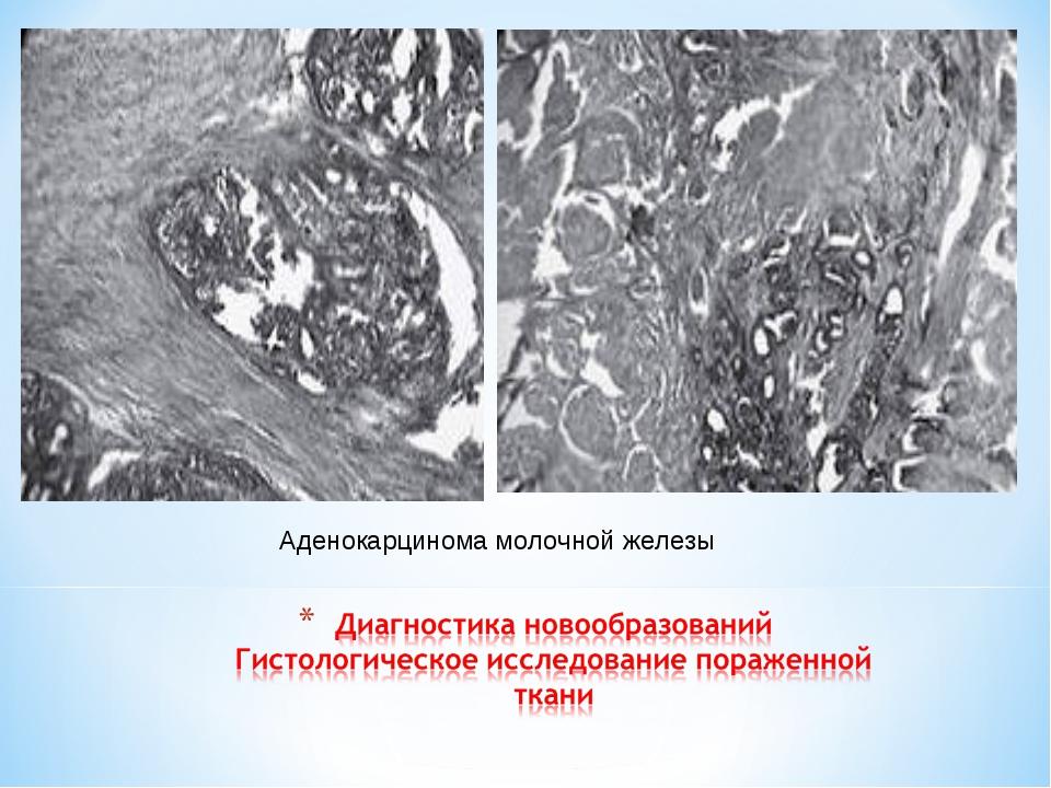 Аденокарцинома молочной железы