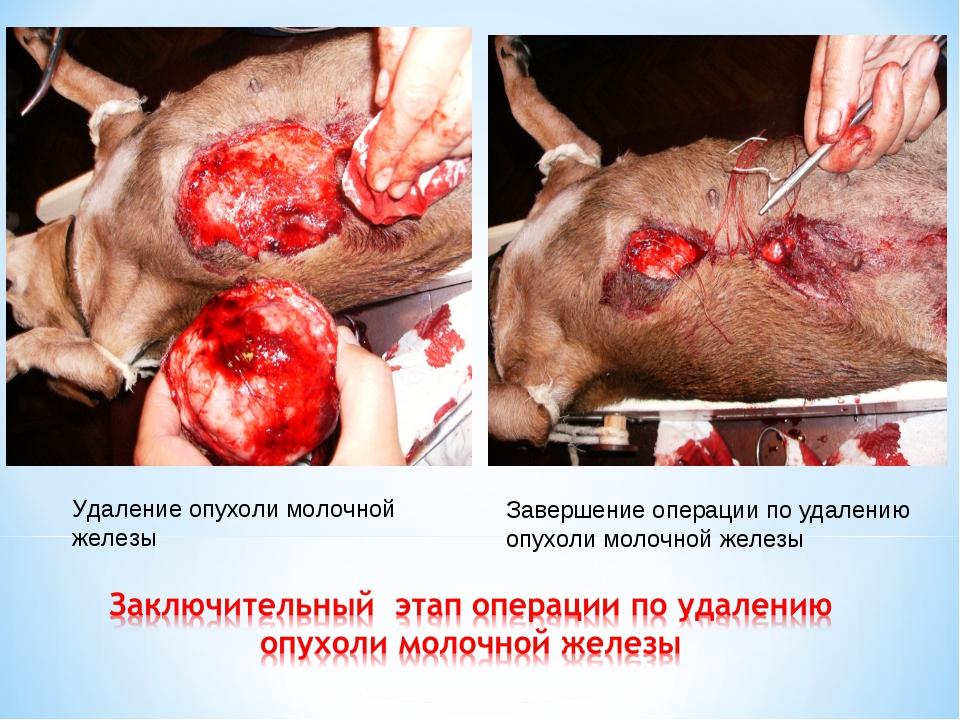 Удаление опухоли молочной железы Завершение операции по удалению опухоли моло...
