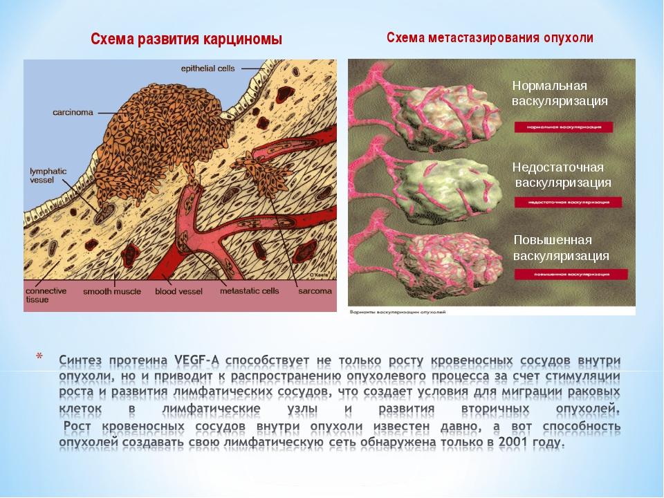 Схема развития карциномы Схема метастазирования опухоли Нормальная васкуляриз...