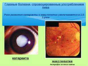 Глазные болезни, спровоцированные употреблением пива Риск развития катаракты