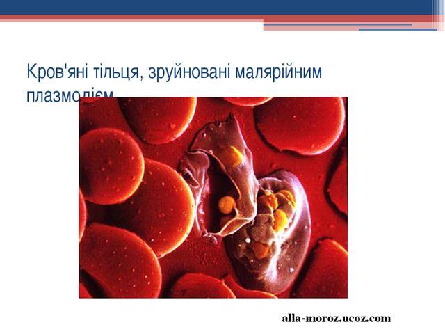 Кров'яні тільця, зруйновані малярійним плазмодієм alla-moroz.ucoz.com
