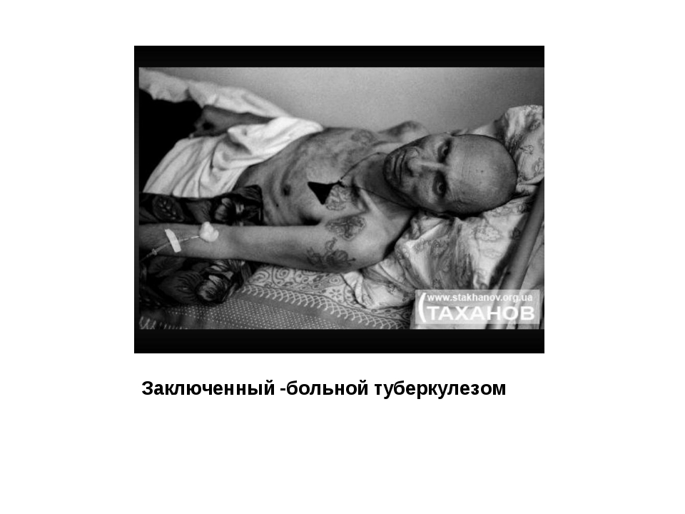 Заключенный -больной туберкулезом