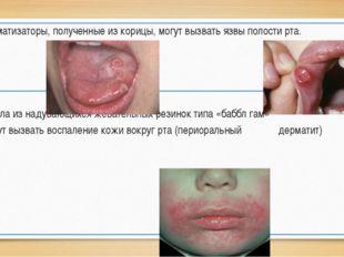 8. Ароматизаторы, полученные из корицы, могут вызвать язвы полости рта. 9. М
