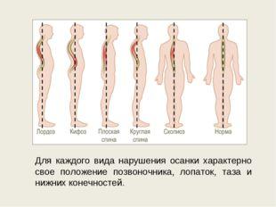 Для каждого вида нарушения осанки характерно свое положение позвоночника, лоп