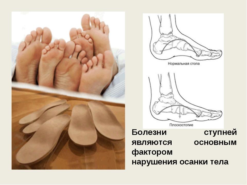Болезни ступней являются основным фактором нарушенияосанкитела