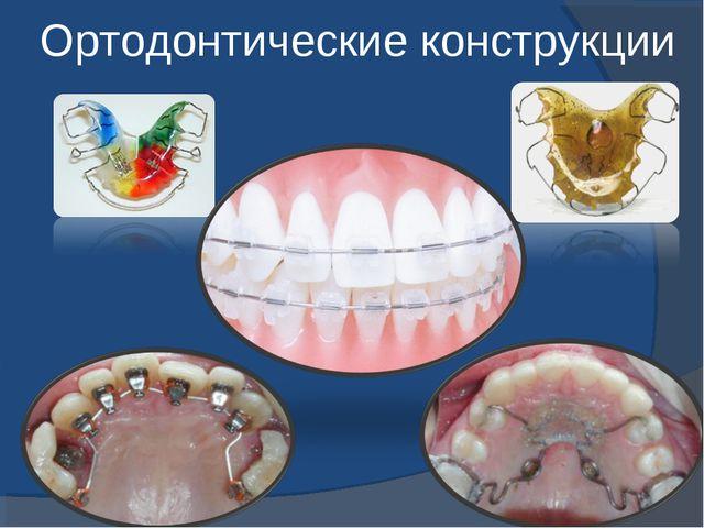Ортодонтические конструкции