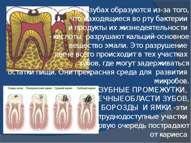 Полости в зубах образуются из-за того, что находящиеся во рту бактерии и про...