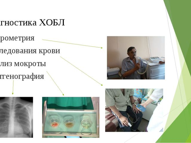 Диагностика ХОБЛ Спирометрия Исследования крови Анализ мокроты Рентгенография