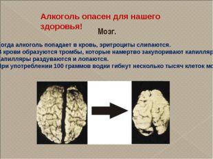 Алкоголь опасен для нашего здоровья! Мозг. Когда алкоголь попадает в кровь, э