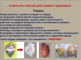 Алкоголь опасен для нашего здоровья! Сердце. Когда алкоголь с кровью попадает
