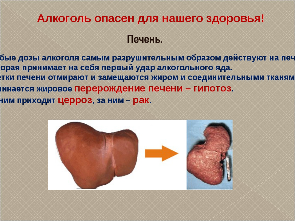 Алкоголь опасен для нашего здоровья! Печень. Любые дозы алкоголя самым разруш...