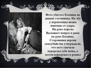 Фото убитого Есенина на диване гостиницы. На лбу у переносицы видна вмятина о