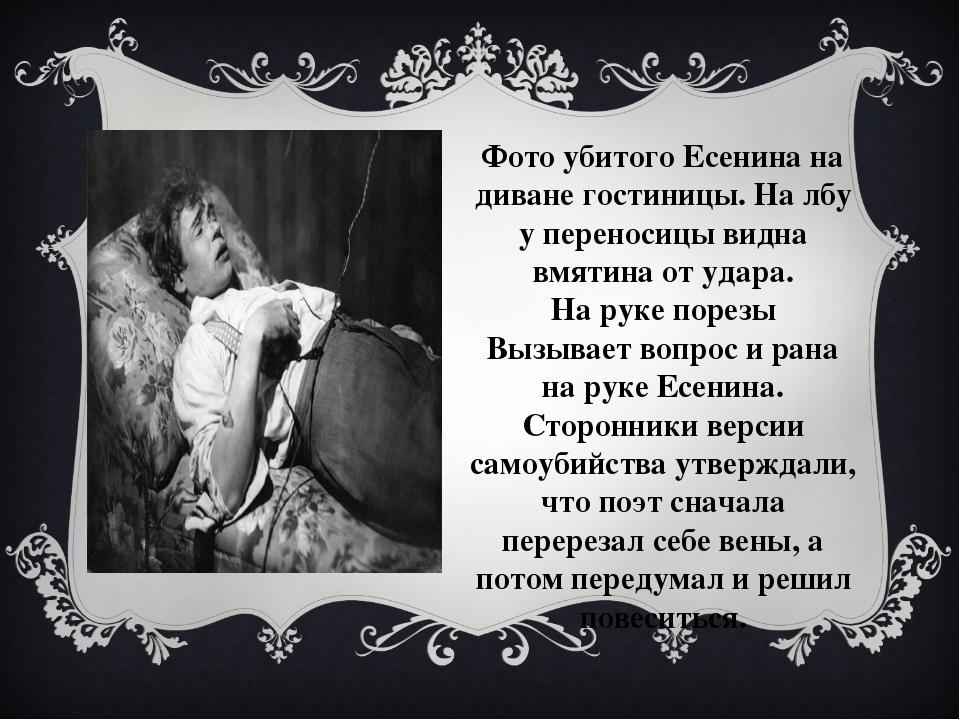 Фото убитого Есенина на диване гостиницы. На лбу у переносицы видна вмятина о...