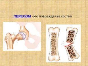 ПЕРЕЛОМ-это повреждение костей.