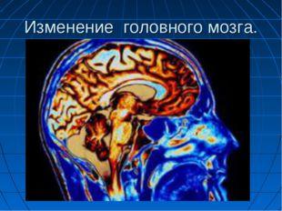 Изменение головного мозга.