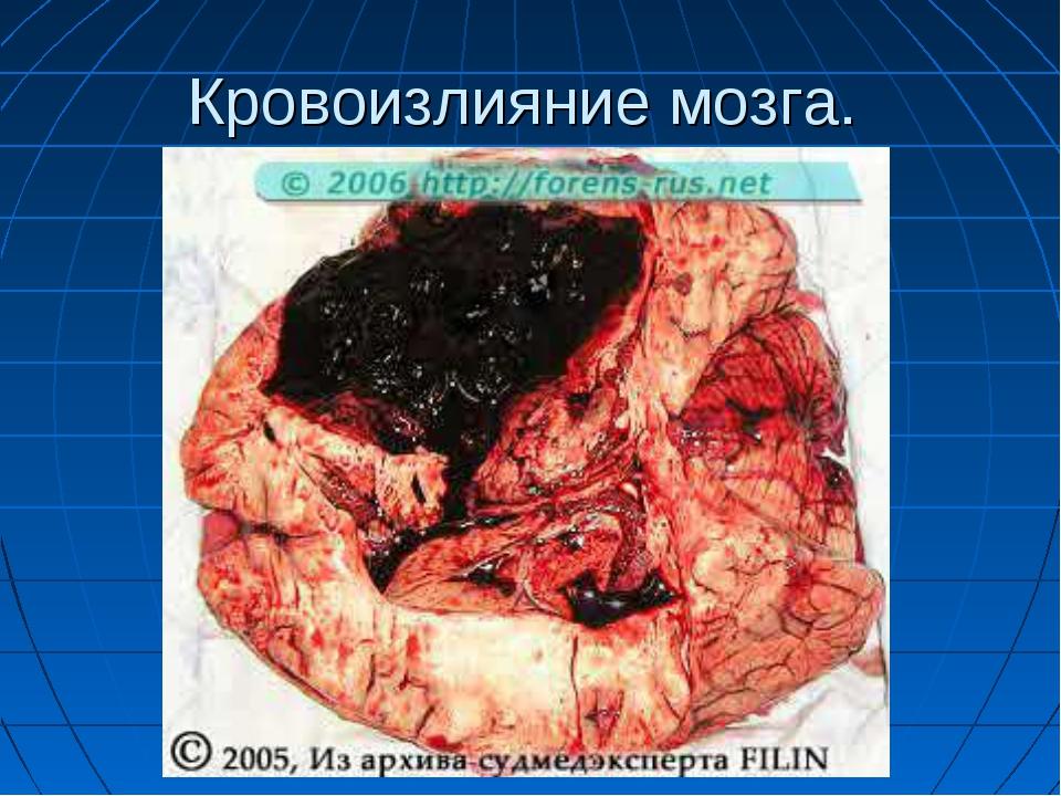 Кровоизлияние мозга.