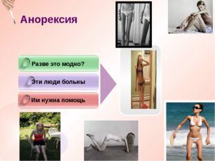 Анорексия Разве это модно? Эти люди больны Им нужна помощь