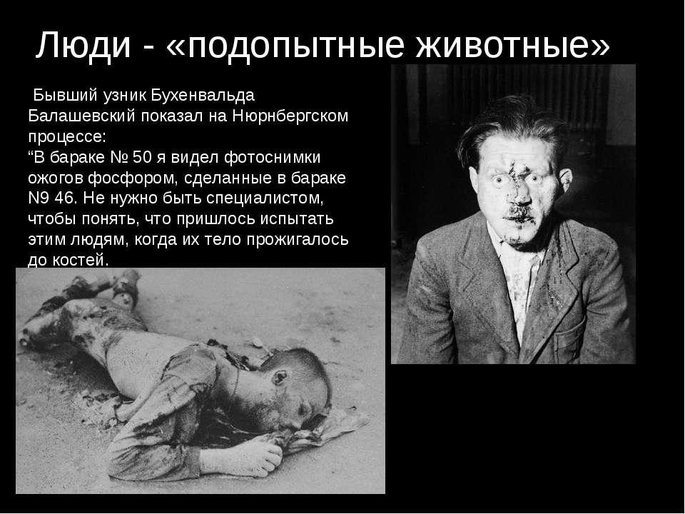 Люди - «подопытные животные» Бывший узник Бухенвальда Балашевский показал на...