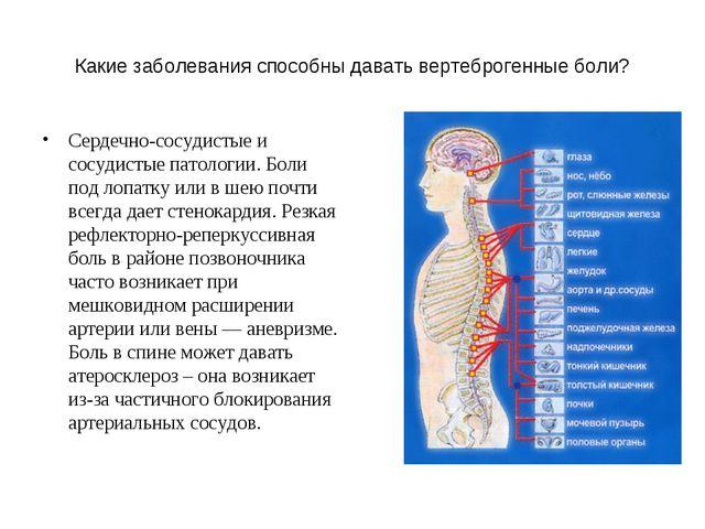 Какие заболевания способны давать вертеброгенные боли? Сердечно-сосудистые и...