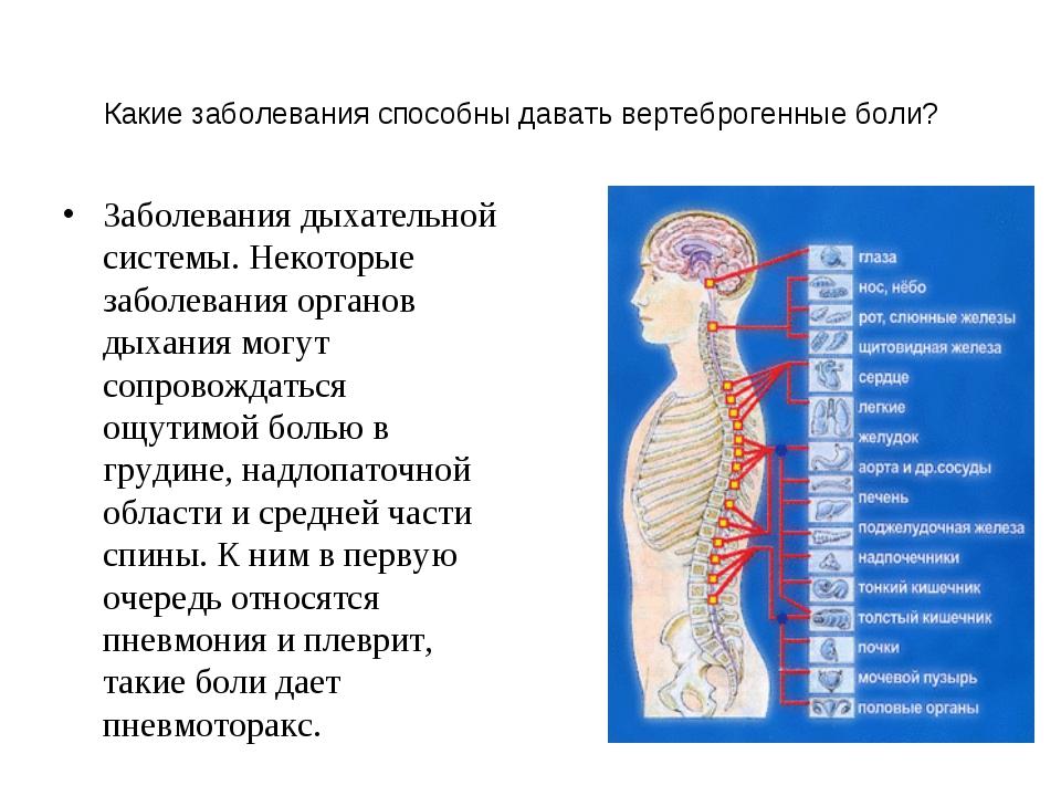 Какие заболевания способны давать вертеброгенные боли? Заболевания дыхательно...