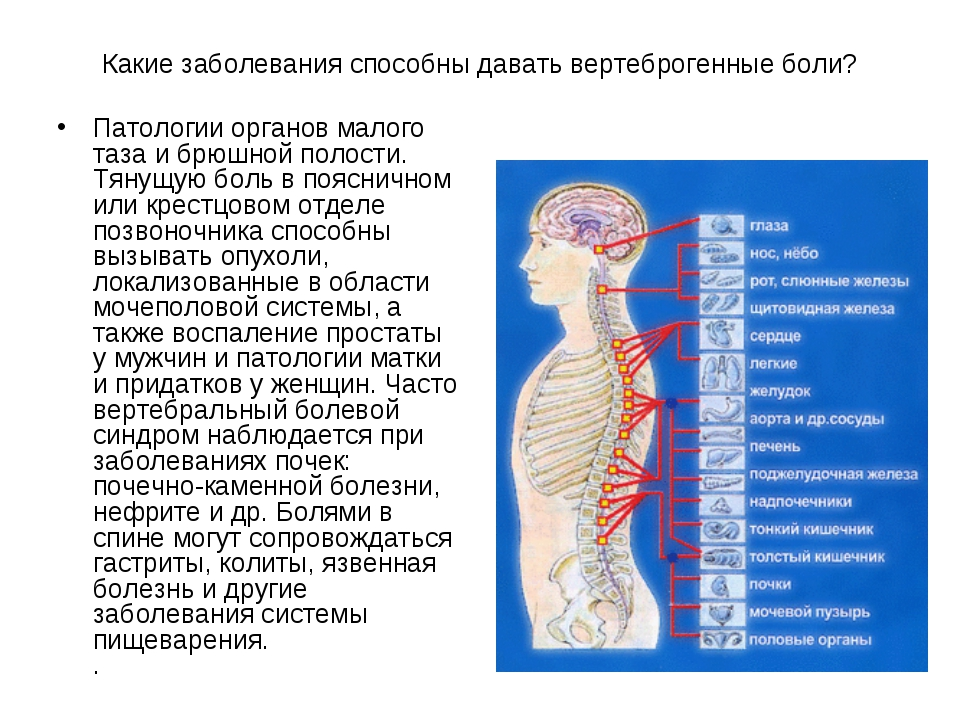 Какие заболевания способны давать вертеброгенные боли? Патологии органов мало...