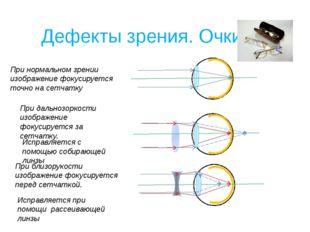 Дефекты зрения. Очки При нормальном зрении изображение фокусируется точно на
