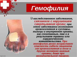 Гемофилия наследственное заболевание, связанное с нарушением свертывания кров