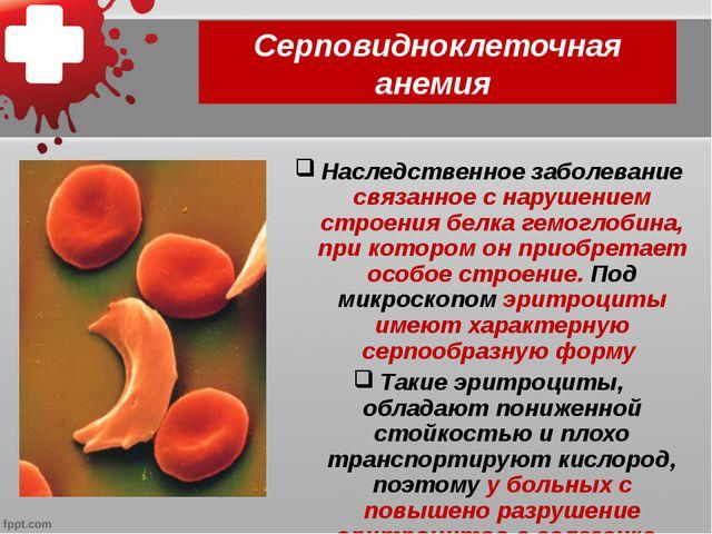 Серповидноклеточная анемия Наследственное заболевание связанное с нарушением...