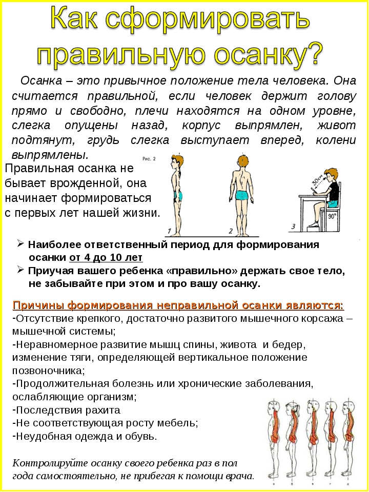 Осанка – это привычное положение тела человека. Она считается правильной, ес...