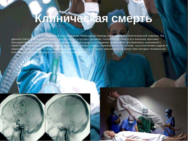 Клиническая смерть Клини́ческая смерть— обратимый этапумирания, переходный...