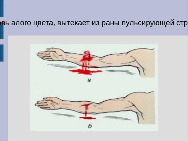 Кровь алого цвета, вытекает из раны пульсирующей струёй