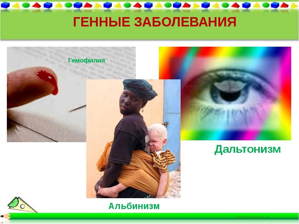 ГЕННЫЕ ЗАБОЛЕВАНИЯ Дальтонизм Альбинизм Гемофилия