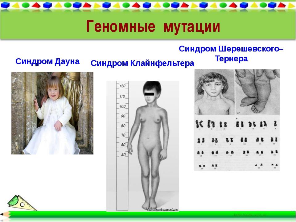 Синдром Дауна Синдром Шерешевского–Тернера Синдром Клайнфельтера Геномные мут...