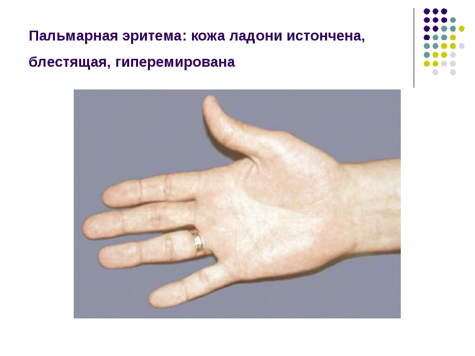 Пальмарная эритема: кожа ладони истончена, блестящая, гиперемирована