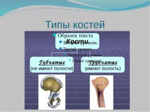 Типы костей