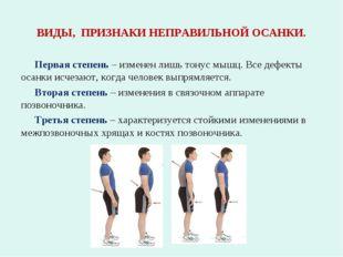ВИДЫ, ПРИЗНАКИ НЕПРАВИЛЬНОЙ ОСАНКИ. Первая степень – изменен лишь тонус мышц.