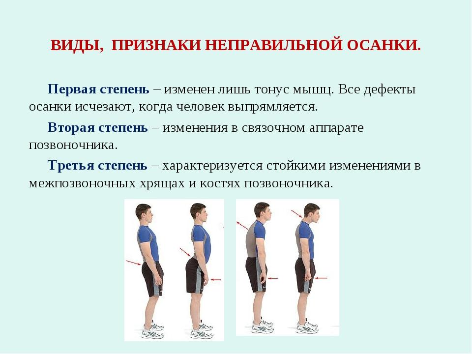 ВИДЫ, ПРИЗНАКИ НЕПРАВИЛЬНОЙ ОСАНКИ. Первая степень – изменен лишь тонус мышц....