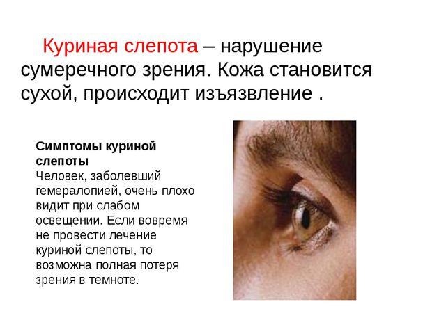 Куриная слепота – нарушение сумеречного зрения. Кожа становится сухой, проис...
